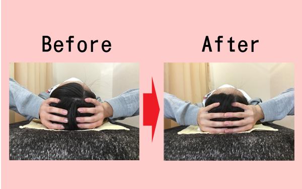 洲本接骨院の小顔・美顔の施術を受けた人の頭の大きさ画像の変化