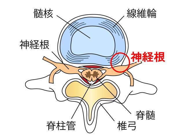 神経根の説明図 洲本接骨院むちうち症ページ資料
