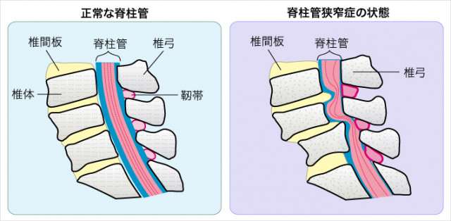 脊柱管狭窄説明図 洲本接骨院脊柱管狭窄症ページ用説明資料