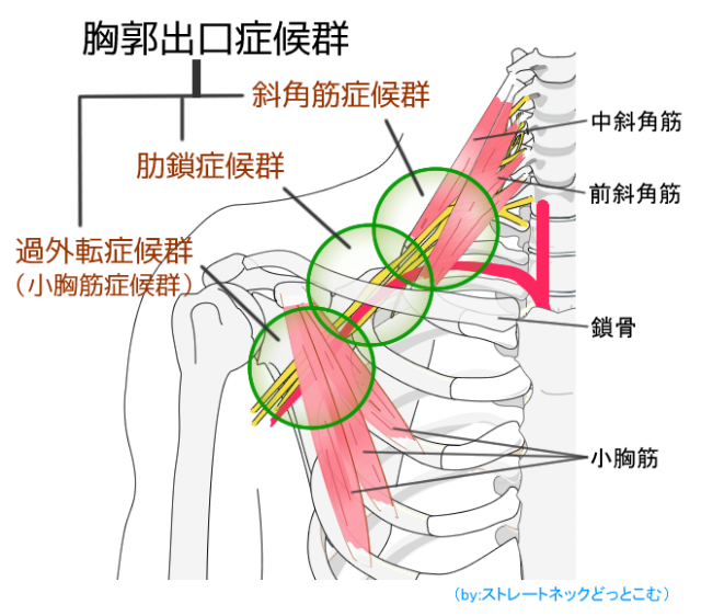 胸郭出口症候群の解説図 洲本接骨院胸郭出口症候群ページ用資料