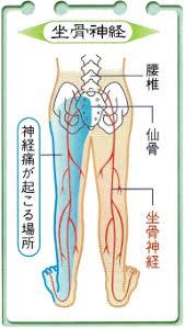坐骨神経痛の解説図 洲本接骨院坐骨神経通用ページ資料