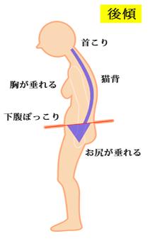 体のゆがみの図 洲本接骨院 患者様向け説明資料