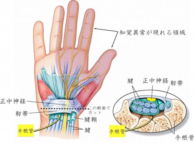 洲本接骨院手根管症候群ページ用手根管のイメージイラスト