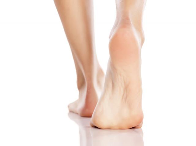 足底筋膜炎のイメージ画像