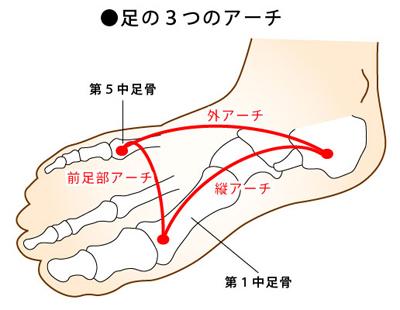 足底筋膜炎のイメージ画像2